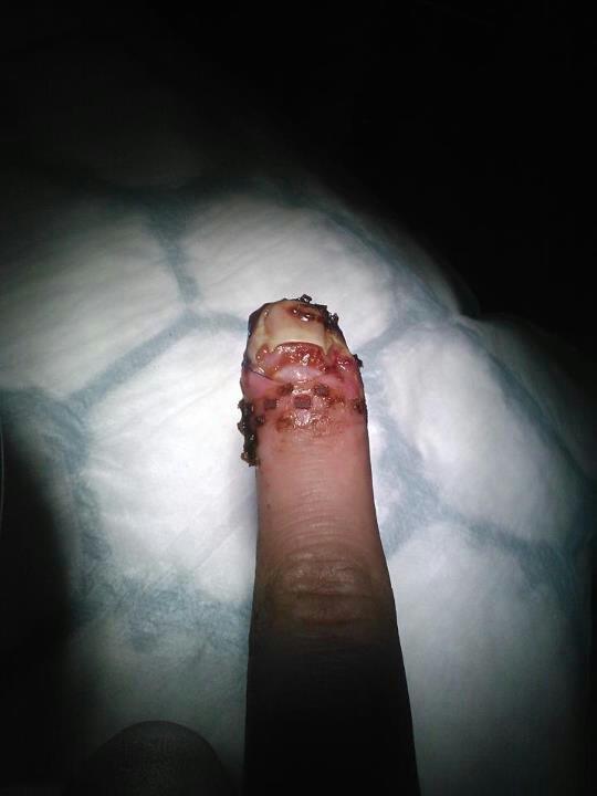 Smashed finger!. .. looks like you sprinkled little bacon bits on it Smashed with ham