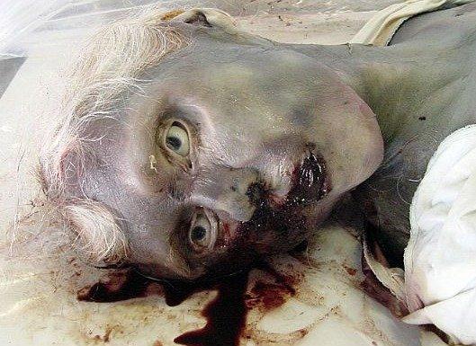 WARNING: MORBID. Decomposing body... I can fap to this WARNING: MORBID Decomposing body I can fap to this