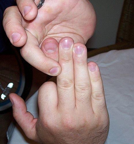 Warning: Morbid. . morbid finger removed