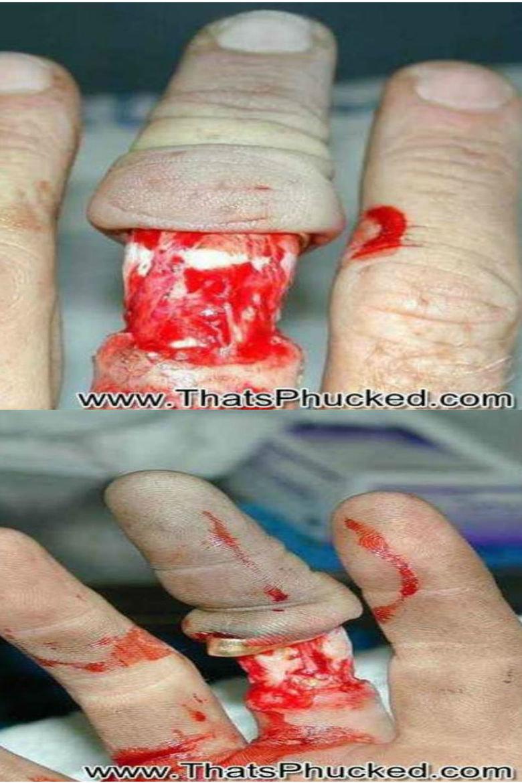 wedding ring. . wedding ring