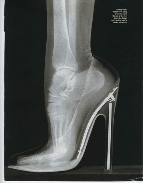 what your bones look like in high heels. gross. FUR urban. puma AH- but brawl's tasha rere pm u r. As a female, I am ashamed to admit, I can't actually walk in heels. Laugh away. morbid